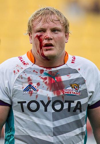 bloody-rugby-players_138h9h24gxb6h1q4xvkecqbmyh