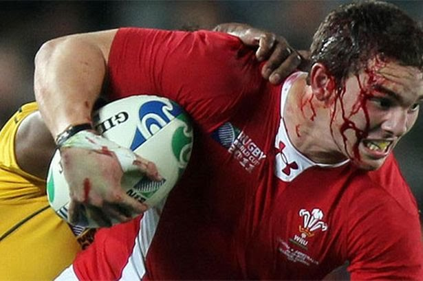 a-bloodied-george-north-battles-on-717275187